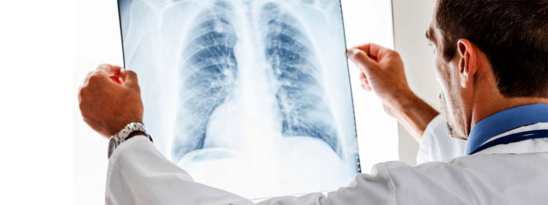 digital xray in medicity hospital kharghar navi mumbai